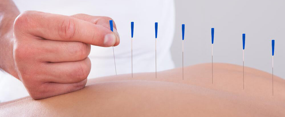 Dry Needling at Austin Preferred